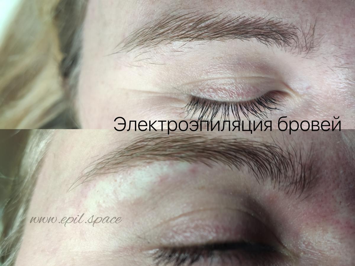 Электроэпиляция лица, электроэпиляция бровей, электроэпиляция СВАО, электроэпиляция Москва, электроэпиляция в Москве