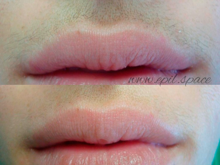 Электроэпиляция усиков, эпиляция усиков, удаление волос навсегда губы